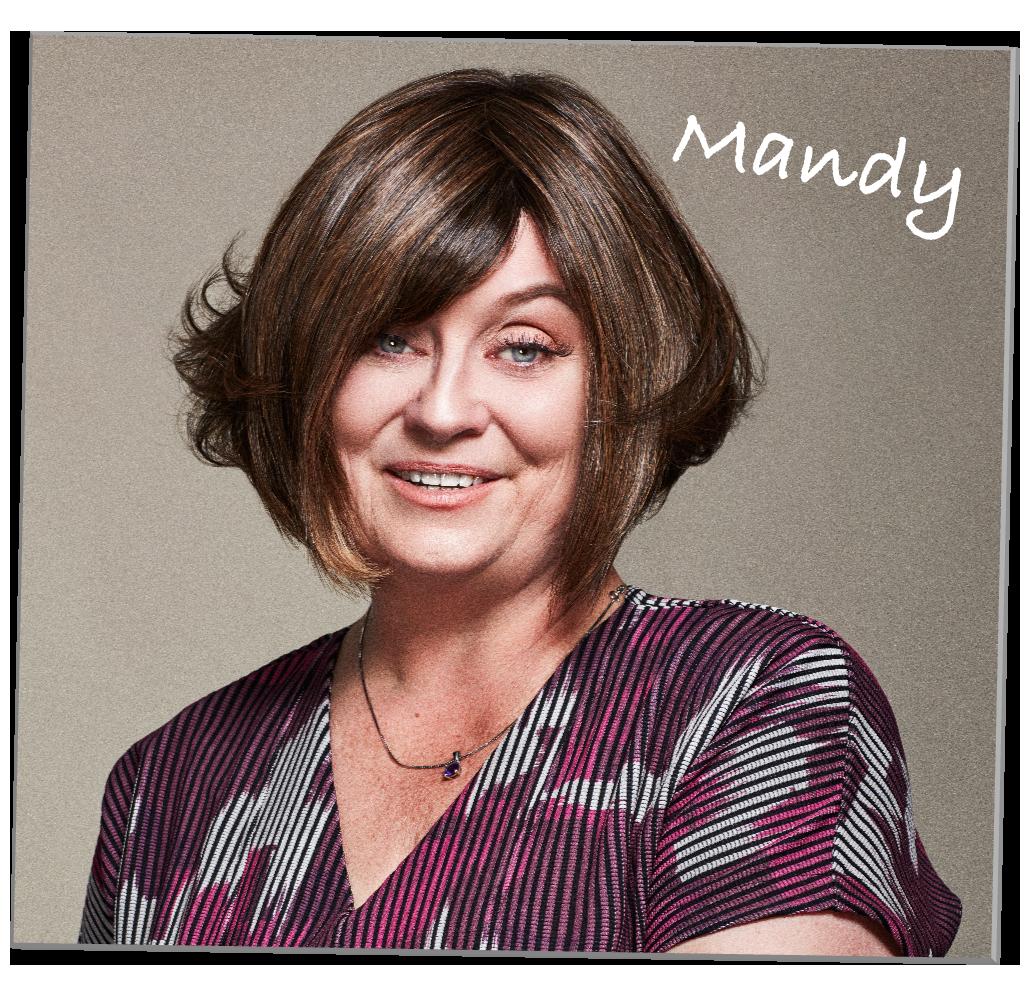 Mandy Lichenoid Keratosis
