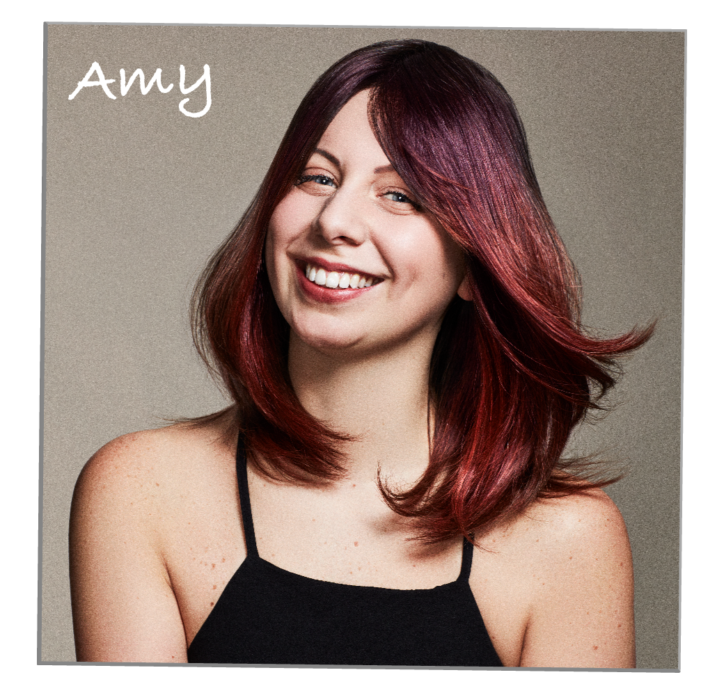 Amy Alopecia Universalis