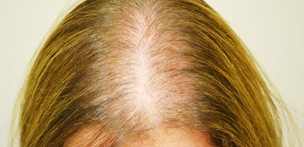 Female Pattern Hair Loss