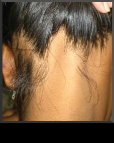 Alopecia Ophiasis